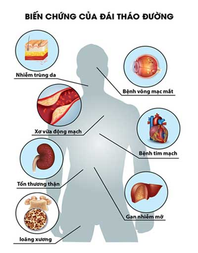 Biến chứng bệnh tiểu đường