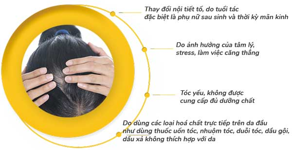 Nguyên nhân tóc bạc tóc gãy rụng